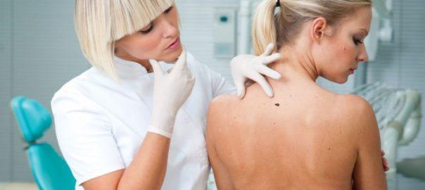 Лікування меланоми в Ізраїлі
