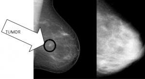 Dense-Breast-Tissue-300x163